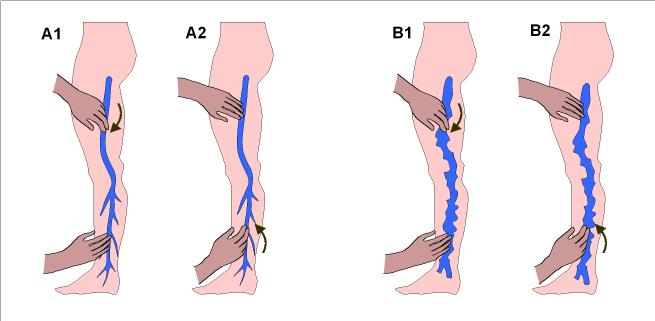 La branche de la chirurgie vasculeuse à rostove
