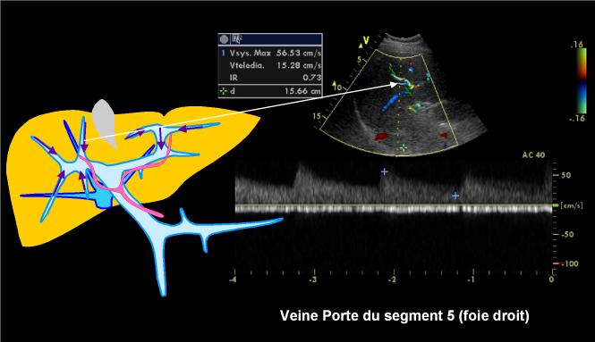 2 Sens Circulatoire Normal Ou Invers 233 Ultrasonographie Echographie Doppler