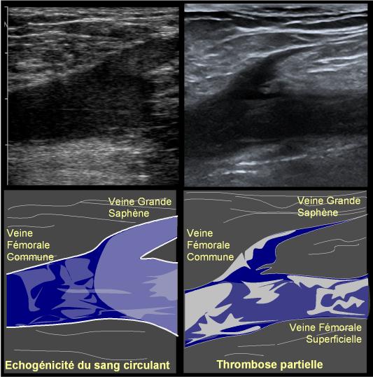 La thrombose des veines profondes des membres inférieurs le traitement le standard